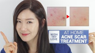 How to Get Rid of Acne Scars Fast? At Home Acne Scar Treatment | Wishtrend