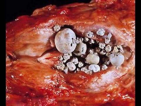 Рак на простата с метастазированием