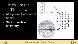 Perimetry principles types of perimetry: Kinetic, static threshold, SWAP, FDT