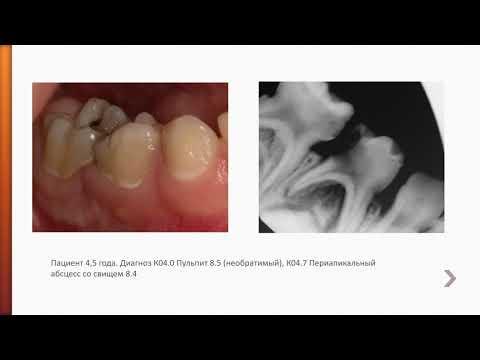 Пульпит временных зубов у детей
