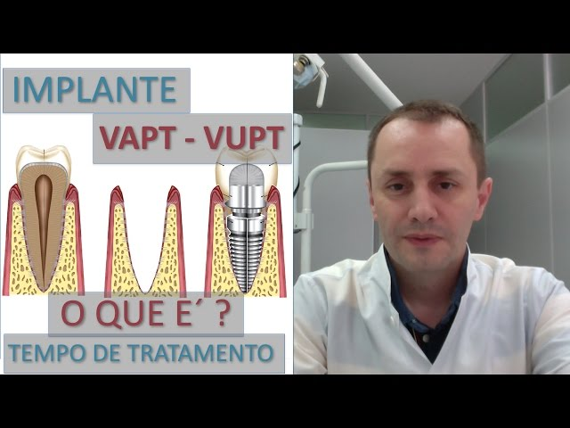 Implante Rápido Vapt-Vupt