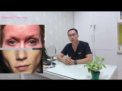Thẩm mỹ Hồng Ngọc tư vấn phương pháp cấy mỡ tự thân