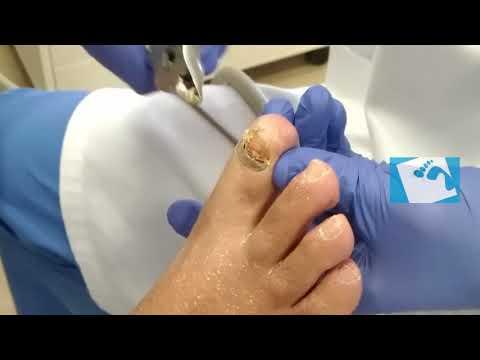 El absceso sobre el dedo cerca de la uña como curar el foro