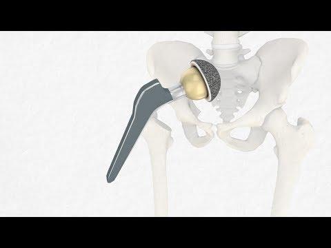 Rückenschmerzen bei Patienten mit Niereninsuffizienz