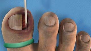 Ingrown Toenail Surgery