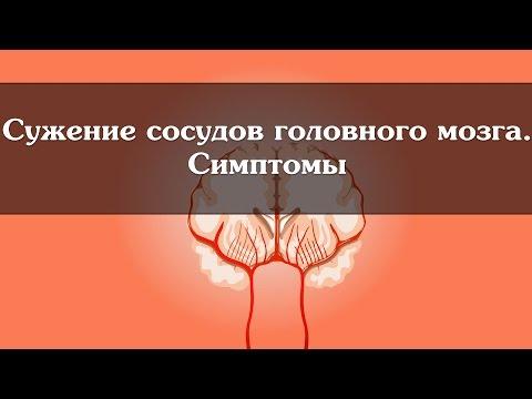 Изменения предстательной железы периуретрально