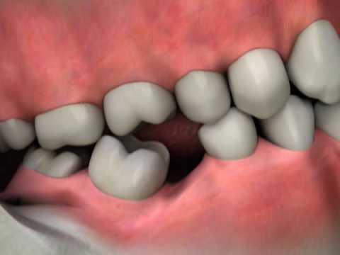 Dental Implants - Replace Missing Teeth - Diagnosis