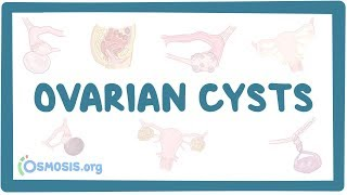 What is right ovarian simple cyst
