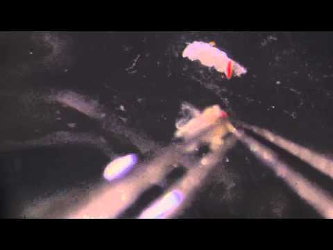 Helminthes hematophages A bolhák leggyakoribb típusai