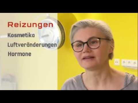 Die Leberentzündung mit das Ekzem