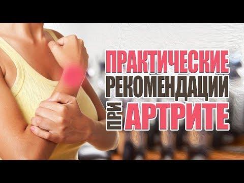 ПРАКТИЧЕСКИЕ РЕКОМЕНДАЦИИ ПРИ АРТРИТЕ, артрозе, лечение, питание.