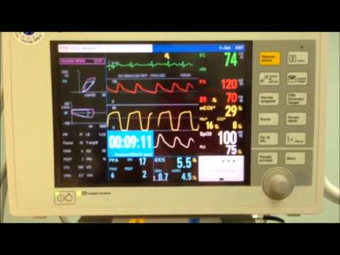 Para diagnosticar una crisis hipertensiva