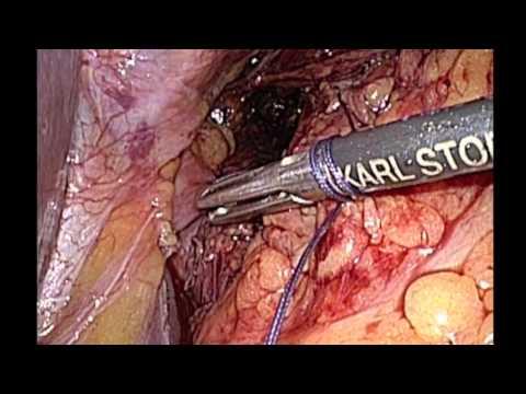Osteocondrosi della colonna vertebrale cervicale tutto è buono