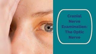 Cranial Nerve Examination: CN 2 Optic nerve