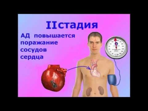 Ставят диагноз гипертония