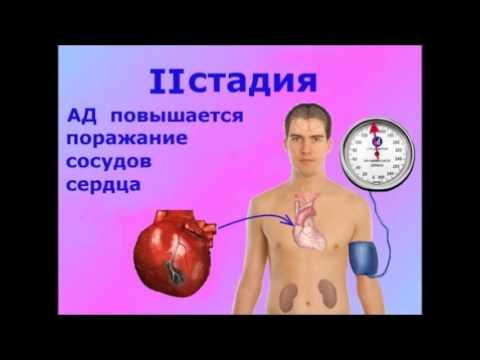 Неумывакин и лечение гипертонии