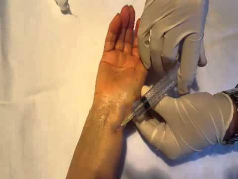 Se sia possibile per pungere diclofenac in osteocondrosi