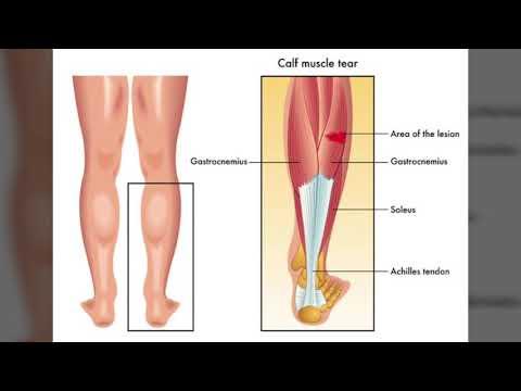 Coxartroza articulației șoldului dureri severe de 3 grade