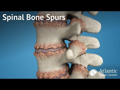 Ostrogi kostne kręgosłupa