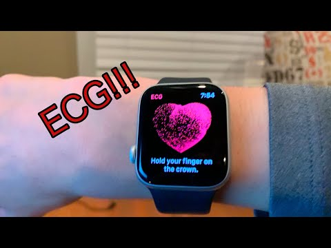 Apple Watch ECG!!