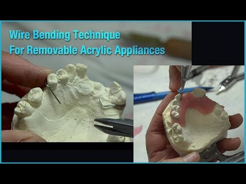 Wire Bending Technique for Removable Acrylic Appliances