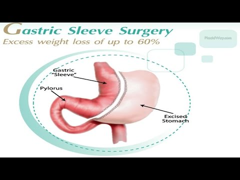 Best-Gastric-Sleeve-Surgery-in-Mexico