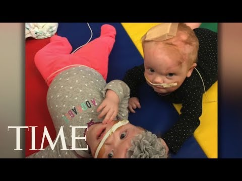 Twins Born Joined At The Head Return Home Four Months After Surgery | TIME