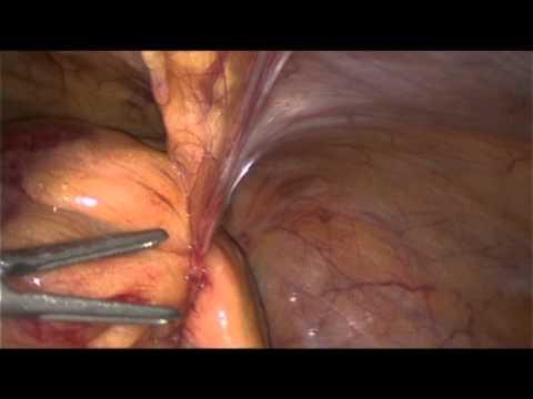 Codice secondo mkb thrombophlebitis di vene