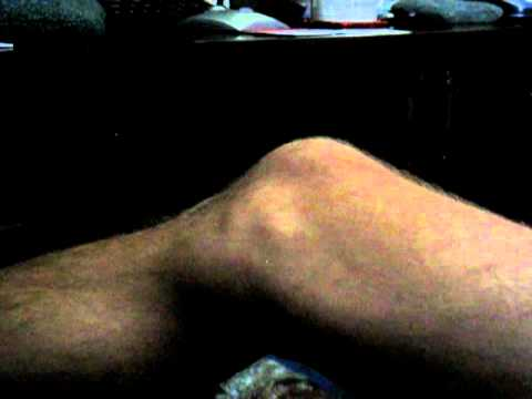 Video ALS Leg Fasciculations Example
