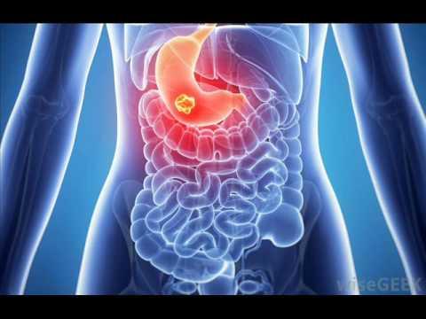 Kaip sveikai prarasti kūno riebalus