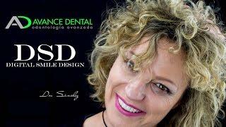 Diseño de Sonrisa Digital antes y después - Madrid - Avance Dental
