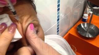 инъекции ботокса в область лба, обучение косметологии