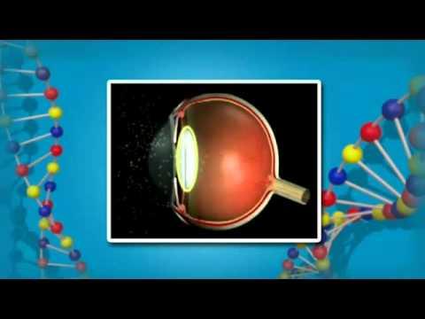 Как можно исправить зрение при близорукости