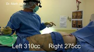 Dr Jabor - Breast Reduction in El Paso, TX