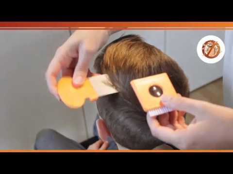 Kopfläuse-Video: Läuse  & Nissen erkennen in trockenem Haar