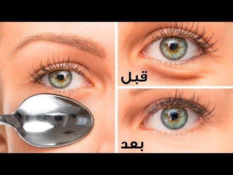 استخدمي مكعب ثلج للتخلص من انتفاخ العين والهالات السوداء في يوم واحد