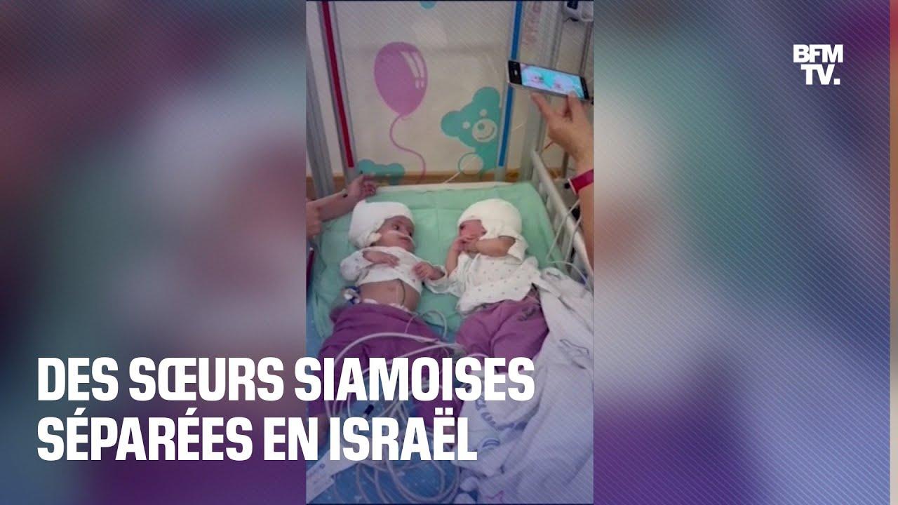 Après 12 heures d'opération, des sœurs siamoises ont été séparées