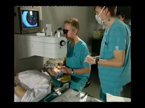 Effetti collaterali del trattamento del cancro alla prostata