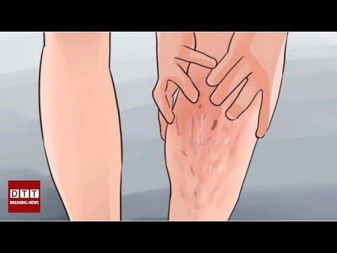 Les veines se produisent et senflent les pieds