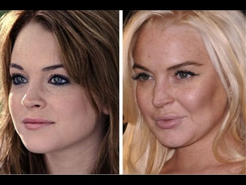 Отек лица после лазерной эпиляции