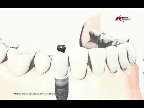 Informational-Video-about-Missing-Teeth-Replacement-in-India