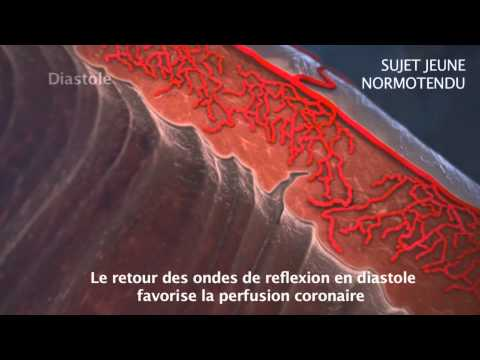 Point de sangsue pour lhypertension