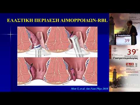 Γεωργόπουλος Σ. - Μη χειρουργική θεραπεία αιμορροΐδων