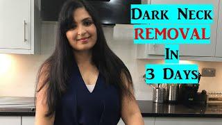 Get Rid of Dark Neck Fast and Easy | Natural Remedy | Samyuktha Diaries