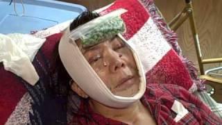 My Complete Facial Plastics Rejuvenation Video Blog & Diary 02
