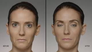 Restylane Before and After Video