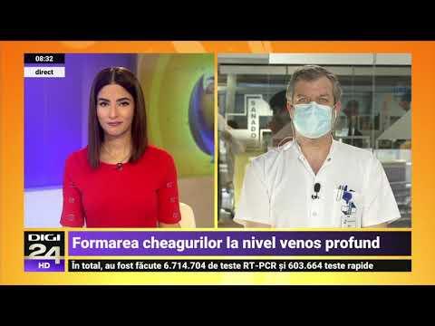 Mod eficient de la varicoză