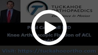 ORV Arthroscopic Reduction and Internal Fixation of Tibial Eminence Fractures