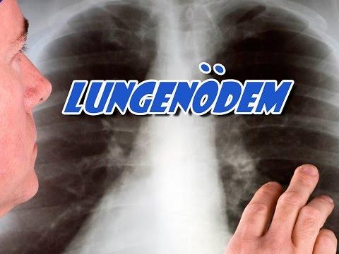 Medikamente gegen Bluthochdruck für Asthmatiker