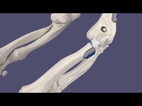 PME Planner - Протезирование локтевого сустава/Корригирующая остеотомия плечевой кости